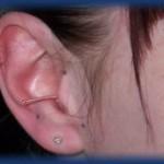 akupunktur-neu-03